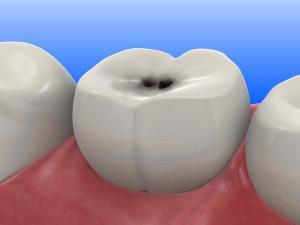Dental_caries