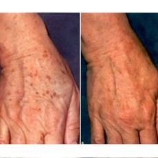 uneven skin tone bio oil