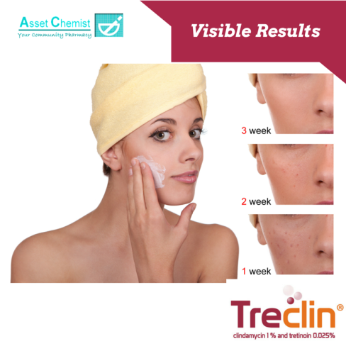 New Treclin , dual treatment for acne